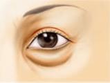 下眼瞼脱脂術の術前・切開・脂肪除去・術後イメージ