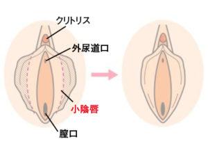 小陰唇縮小術を知っていますか 目 鼻の美容整形なら八事